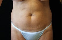 Mini Tummy Tuck before 1158733