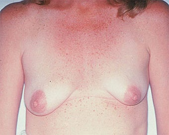 Breast Asymmetry Correction before 281313