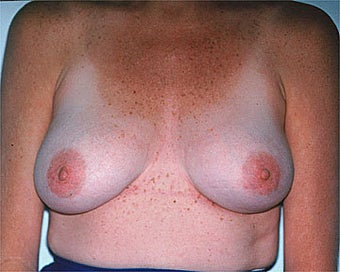 Breast Asymmetry Correction after 281313