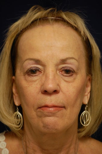 65-74 year old woman treated with Facelift after 3321664