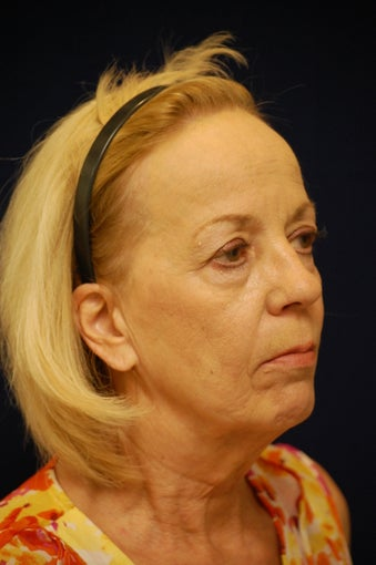 65-74 year old woman treated with Facelift 3321664