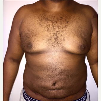 25-34 year old man treated with Male Breast Reduction after 3173909