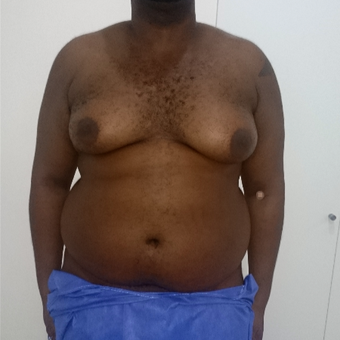 25-34 year old man treated with Male Breast Reduction before 3173909
