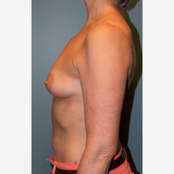55-64 year old woman treated with Breast Augmentation before 3710746