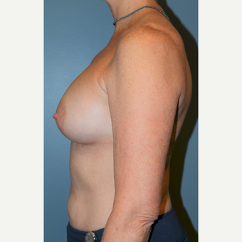55-64 year old woman treated with Breast Augmentation after 3710746