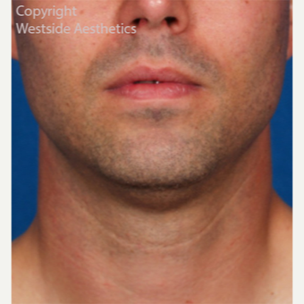Kybella Double Chin Treatment before 2972773