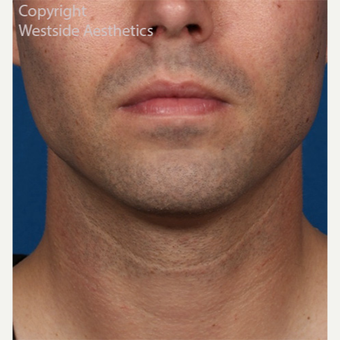 Kybella Double Chin Treatment after 2972773