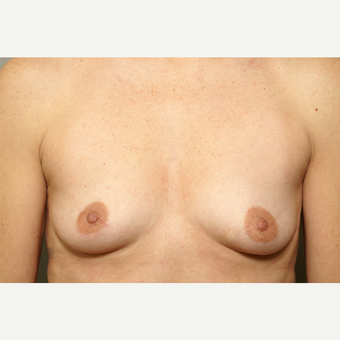 25-34 year old woman treated with Breast Augmentation before 3061599