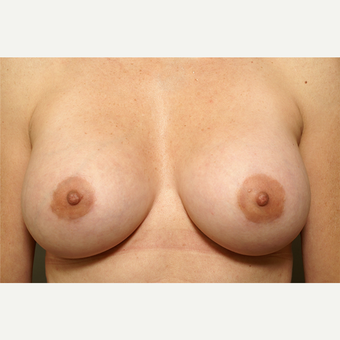 25-34 year old woman treated with Breast Augmentation after 3061599
