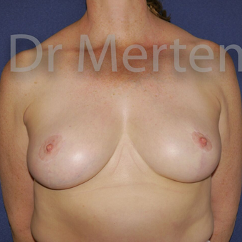Breast Reduction after 3648520