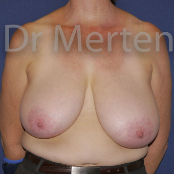 Breast Reduction before 3648520