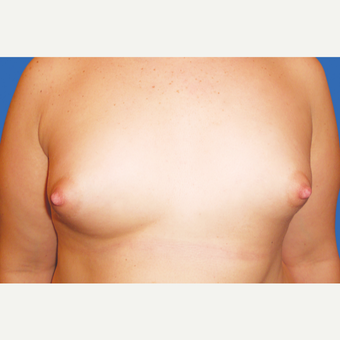 25-34 year old woman treated with Breast Augmentation before 3495097