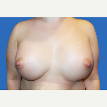 25-34 year old woman treated with Breast Augmentation after 3495097