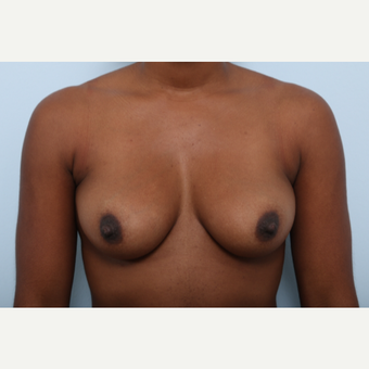 Breast Augmentation before 3345135
