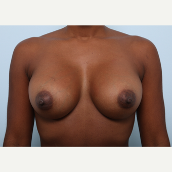 Breast Augmentation after 3345135