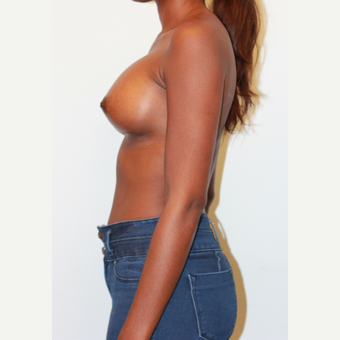 18-24 year old woman treated with Breast Augmentation after 3026907