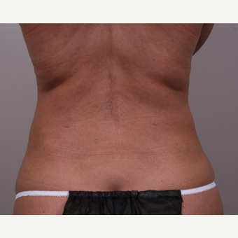 45-54 year old woman treated with Liposuction after 3142037