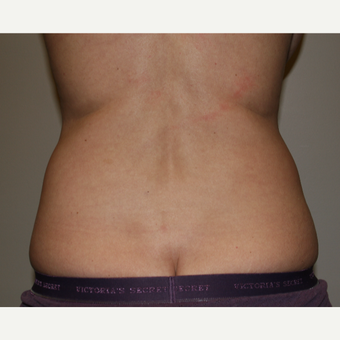 45-54 year old woman treated with Liposuction before 3142037