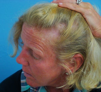 45-54 year old woman treated with Hair Transplant 2929939