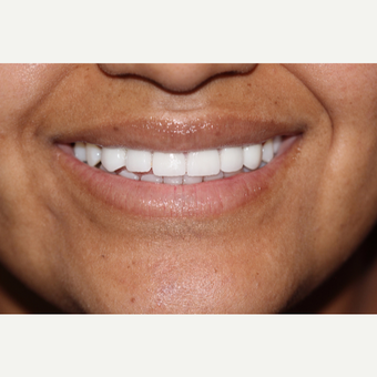 25-34 year old woman treated with Porcelain Veneers after 3544990