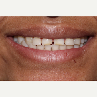 25-34 year old woman treated with Porcelain Veneers before 3544990