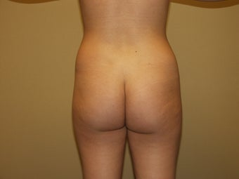25 year old female Brazilian Butt Lift patient before 1251919