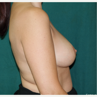 35-44 year old woman treated with Breast Lift/Reduction after 3659351