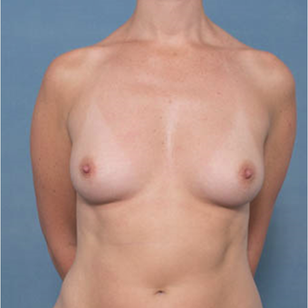 35-44 year old woman treated with Breast Augmentation before 3277806