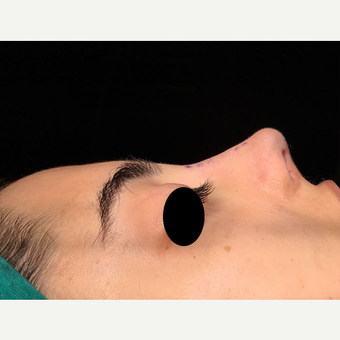 25-34 year old woman treated with Rhinoplasty after 3211857
