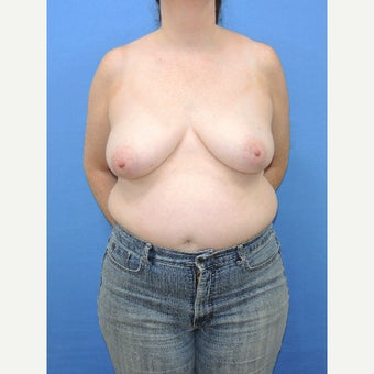 45-54 year old woman treated with Breast Reconstruction before 2524677
