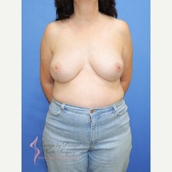 45-54 year old woman treated with Breast Reconstruction after 2524677