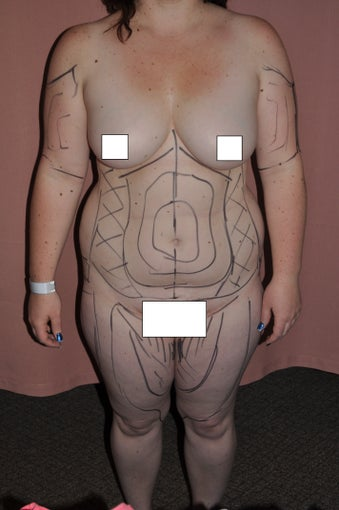 26 year old fit female patient wIth multiple areas treated by one liposuction procedure. before 769638