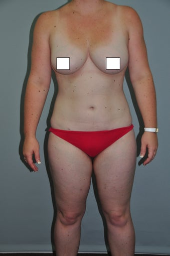 26 year old fit female patient wIth multiple areas treated by one liposuction procedure. after 769638