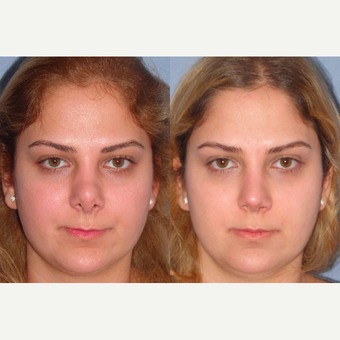25-34 year old woman treated with Revision Rhinoplasty before 3521501