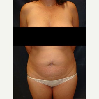 45-54 year old woman treated with Tummy Tuck before 2572396