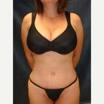 45-54 year old woman treated with Tummy Tuck after 2572396