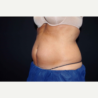 55-64 year old woman treated with CoolSculpting before 2966251
