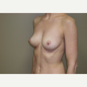 25-34 year old woman treated with Breast Augmentation before 3292415