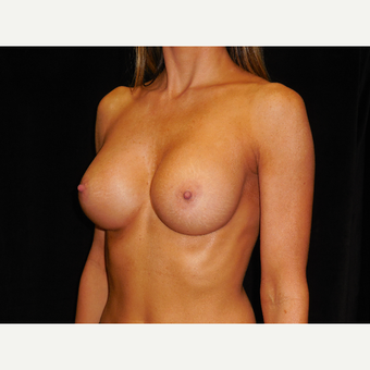 25-34 year old woman treated with Breast Augmentation after 3292415