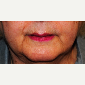 Non-Invasive fillers to soften Jowls and Frown Lines before 3083453