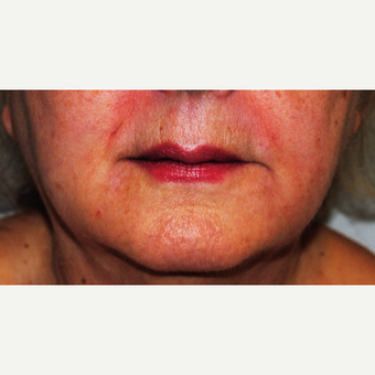 Non-Invasive fillers to soften Jowls and Frown Lines after 3083453