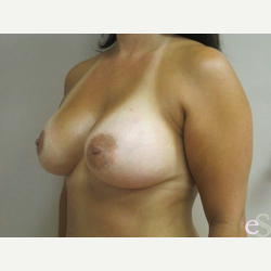 Breast Implants after 3373673