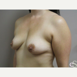 Breast Implants before 3373673