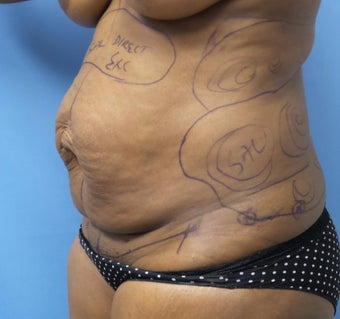 35-44 year old woman treated with Tummy Tuck before 3168365