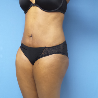 35-44 year old woman treated with Tummy Tuck after 3168365