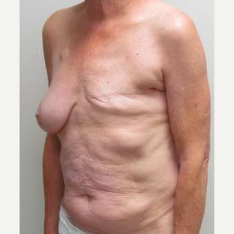 Staged Breast Reconstruction with Left DIEP flap for this 64 Year Old Woman before 3006050
