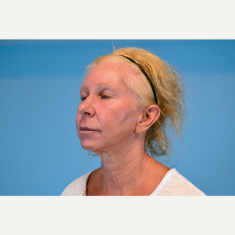 45-54 year old woman treated with Facelift before 3630247