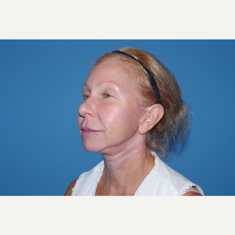45-54 year old woman treated with Facelift after 3630247