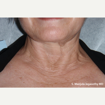 Neck Wrinkles Erased with PRP Injections before 1857287