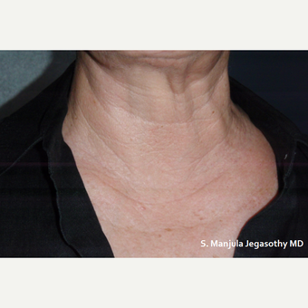 Neck Wrinkles Erased with PRP Injections after 1857287